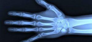 X Ray Tech Programs